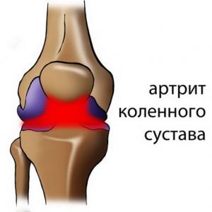 Артрит коленного сустава.