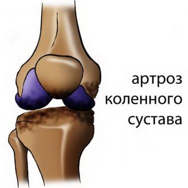 Сочетание серии компрессов на суставы и медетерапии