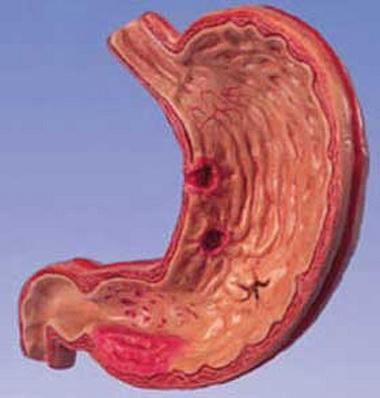 Гипоацидный гастрит