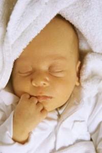 Физиологическая желтуха новорожденных.