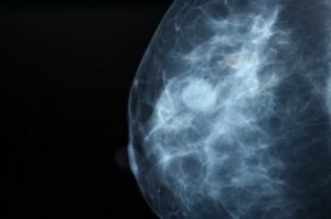 Опухоль молочной железы.