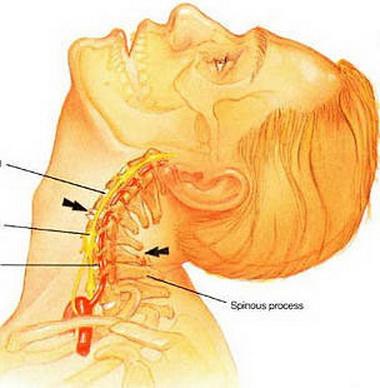 Симптоматика остеохондроза