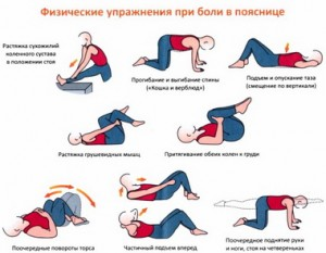 Упражнения при болях в пояснице.